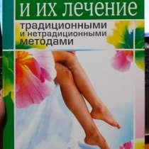 Болезни ног и их лечение традиционные и нетрадиционные метод, в Ейске