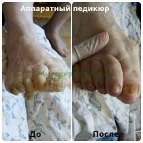 Аппаратный Педикюр пожилым,диабетикам.Лечим проблемные ногти, в Москве
