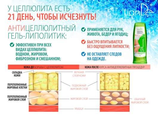 Антицеллюлитный гель-липолитик в Екатеринбурге Фото 3